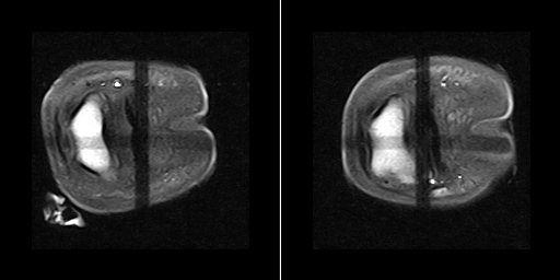 MRI shows horse Adhesions of the deep-digital-flexor tendon to the navicular bone